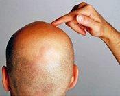 თმის გადანერგვა