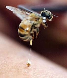 ფუტკრის ნაკბენით მკურნალობა