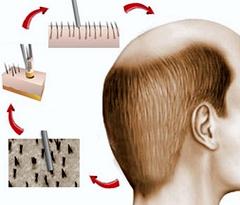 თმის გადანერგვის უნაკერო მეთოდი - FUE (Follicular Units Extraction)