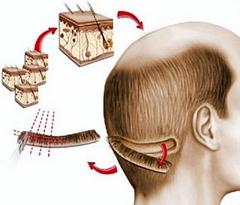 ოპერაციული (ზონრის) მეთოდი - FUT/ STRIP (Follicular Unit Transplant)