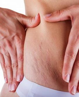 ფეხმძიმობის მე-13 კვირა - სტრიები