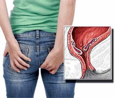 ჰემოროის (ბუასილის) მკურნალობის ტაქტიკა