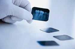 კბილების რენტგენი