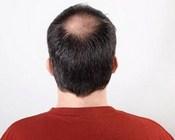 თმის ცვენა მამაკაცებში