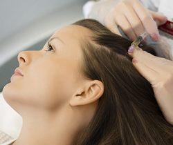 თმის ცვენის მკურნალობის სხვა მეთოდები