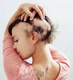 ფარისებრი ჯირკვლის მიზეზით გამოწვეული თმის ცვენა