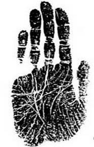 იდეალურ-დაკვანძული ხელის ტიპი