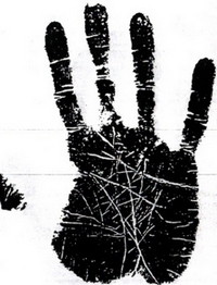 მოტორულ- ძვლოვანი (გაძვალტყავებული) ტიპის ხელი