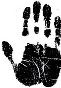 მოტორულ-ხორციანი ტიპის ხელი